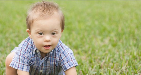 I am a man with Down syndrome and my life is worth living